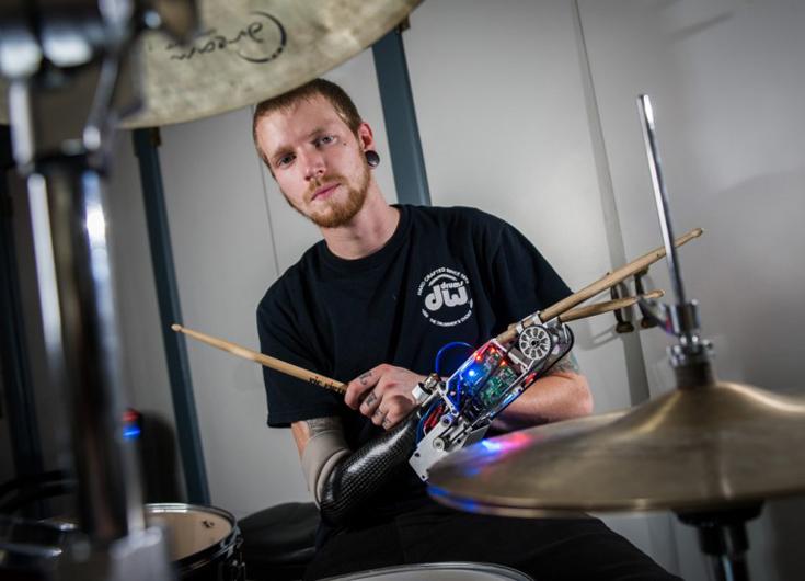 Барабанщик Джейсон Барнс с искусственной рукой